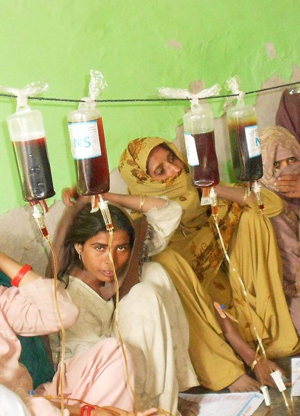 51% of Indian women aged 15-49 anaemic, most in world: A New Study Reveals