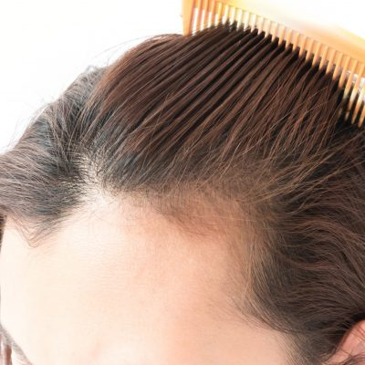 Laser Hair Therapy Vs Hair Transplant