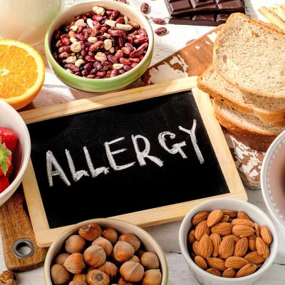 Food Allergies: What You Must Know