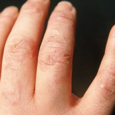 Can Use of Hand Sanitizer Damage my Skin? Answered!