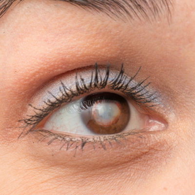Cataract: Steps to Delay & Prevent It.