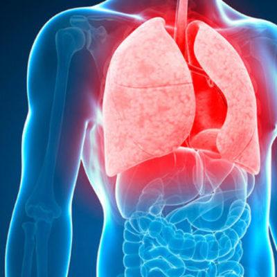 Karnataka government launches drive to eradicate TB